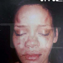Rihanna - Post Beating