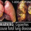 FDA & HHS Anti-Tobacco Warning - 03