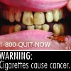 FDA & HHS Anti-Tobacco Warning - 04
